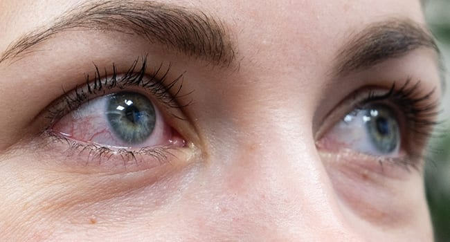 Pink eye may be primary symptom of COVID-19